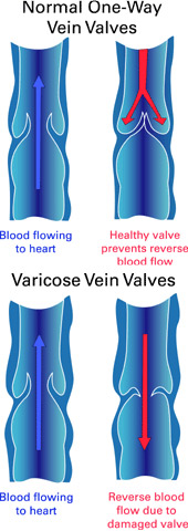 Vein Drawing